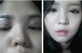 女神养成记  双眼皮+开眼角