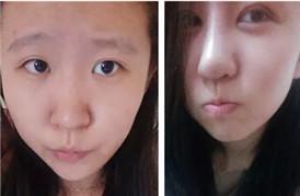 隆鼻手术十天后 现在美美哒