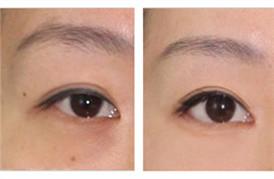 眼底脂肪重新排列去黑眼圈的第二个月