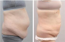 吸脂+腹壁成形术 大妈也有腰了