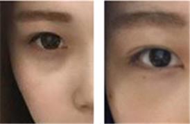 做手术去除黑眼圈,术后一周的恢复记录