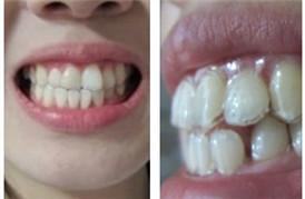 分享我用透明牙套做矫正的经历
