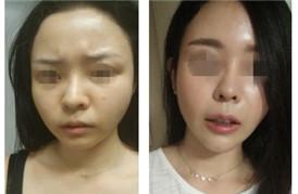 一针就能消灭眉间纹、下巴核桃纹、八字纹,还有大圆脸