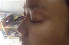 刚在医院做了提眉和眼袋去除术