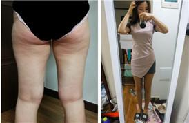 臀部+腿部吸脂50天后的变化
