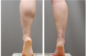 瞧一瞧看一看啦,瘦腿针术后一个月有效果啦