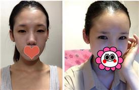 眼睛+脂肪移植+肉毒素 术后10天恢复记录