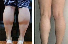在韩国做了小腿神经阻断术,终于拔掉萝卜腿