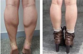 瘦腿针瘦小腿,分享我的大象腿变身过程