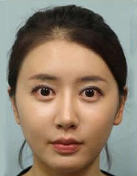 面部整形手术对比案例