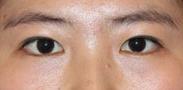 半島眼整形外科-一定要曹仁昌給我做眼睛