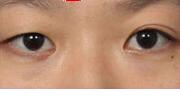 别人说我的眼睛像韩国明星金泰熙