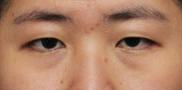 半岛眼整形外科-一定要曹仁昌给我做眼睛