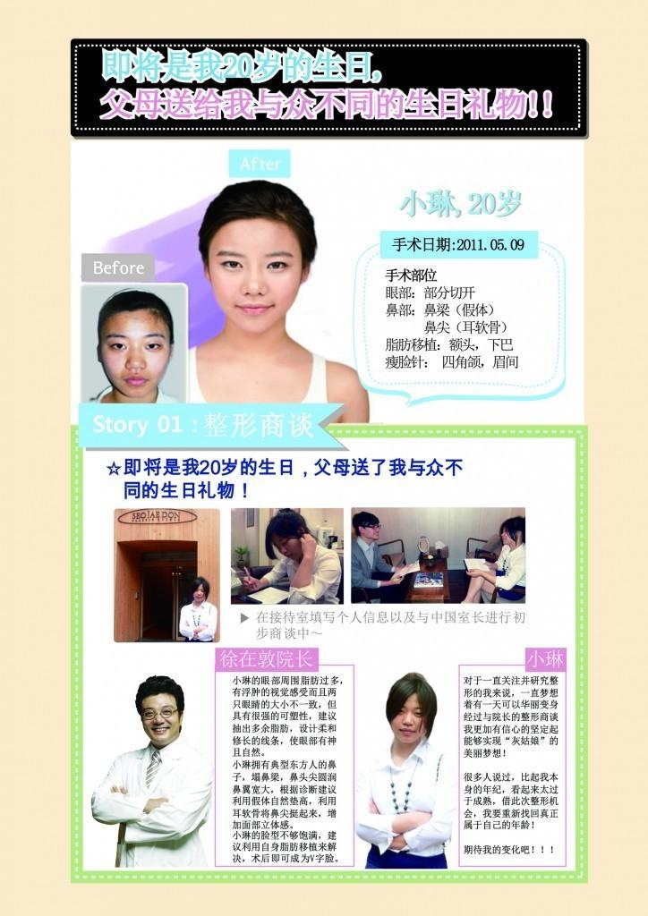 20岁小琳做完眼部+鼻部+脂肪移植后 更上镜了