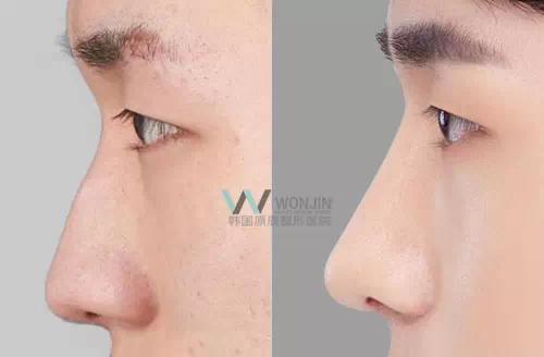 鼻头整形对比案例