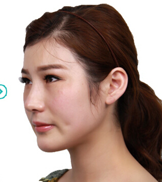 V-LINE-颜面轮廓--综合美眼--综合美鼻