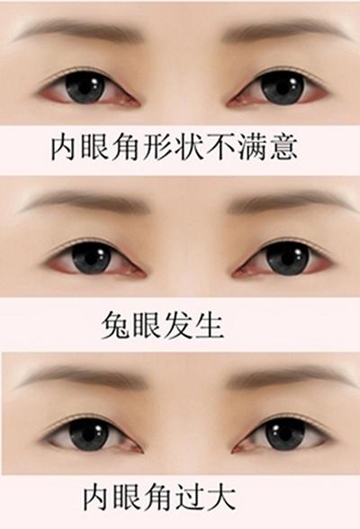 内眼角修复类型
