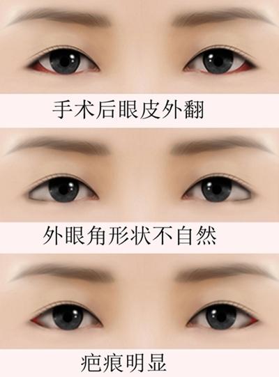 外眼角修复手术