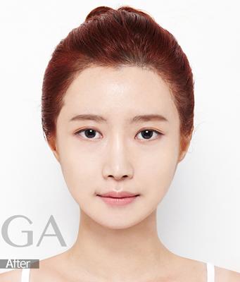 面部轮廓整形案例