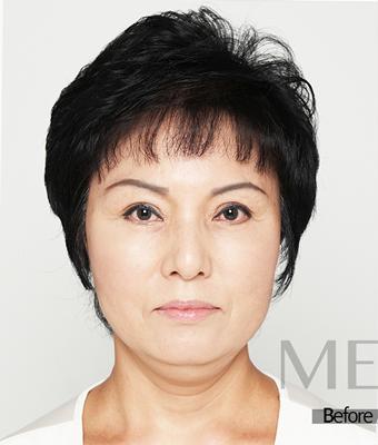 面部提升手术案例