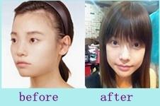 【图】分享我去韩国ID做脸型的经历