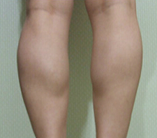 小腿整形对比案例