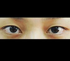 双眼皮对比案例