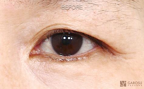 双眼皮整形案例