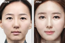 去韩国隆鼻修复出色的专家