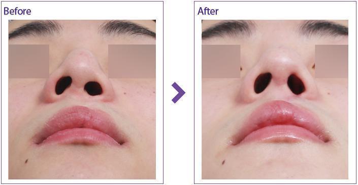 隆鼻修复手术