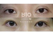 韩国做眼睛修复出众的专家是谁
