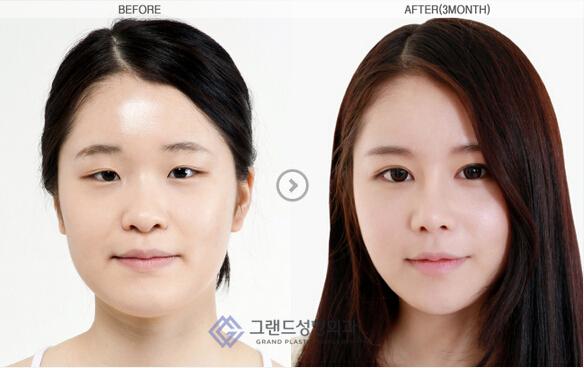 韩国隆鼻案例对比图
