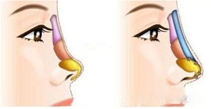 隆鼻假体示意图