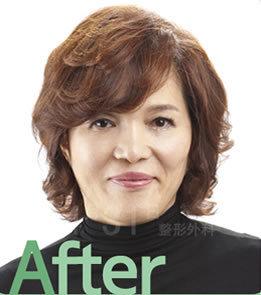 做了面部提升术 回到了10年前的容貌