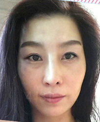 分享:女子赴韩整形鼻子修复手术故事