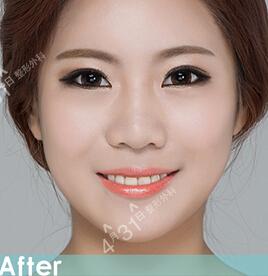 眼部整形+颧骨缩小+V-Line手术 重返年轻容颜