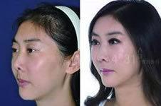 韩国隆鼻手术有后遗症吗