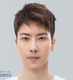 樸相薰ID醫院-韓國ID醫院男士地包天凸嘴整形前后對比照片