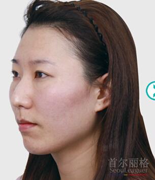 双眼皮+综合隆鼻整形对比案例