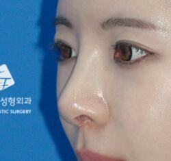 鼻部整形+脂肪移植整形案例