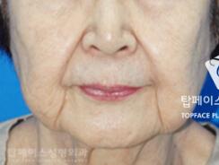 韩国秀美颜医院LEEDS脸部提拉术对比案例