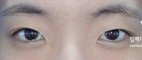 韩国秀美颜整形外科眼综合手术案例