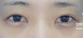 开内眼角+ 开外眼角整形对比案例_术前