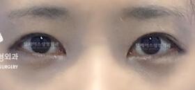 开内眼角+ 开外眼角整形对比案例_术后