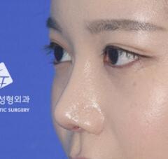 鼻部修复术整形对比案例_术后