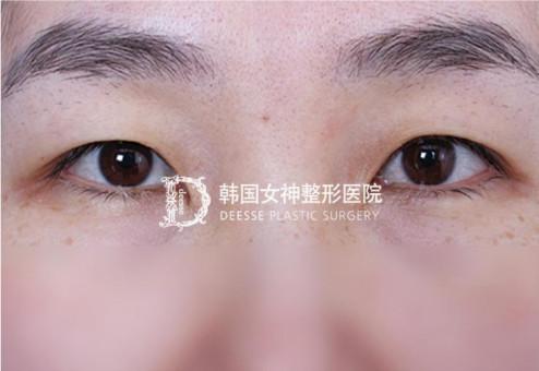 韩国女神整形-双眼皮+丰卧蚕对比图