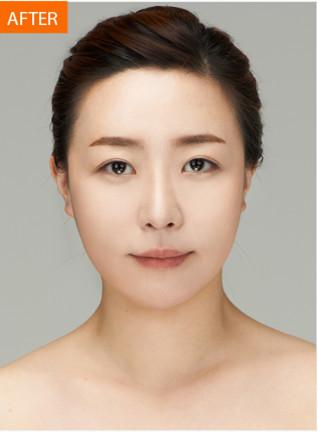 全脸脂肪移植对比图