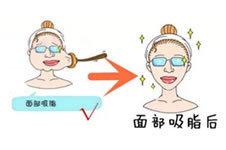 韩国BK做面部吸脂整形有那么好吗