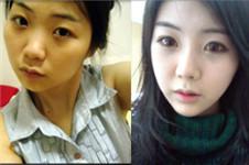 在韩国爱婷180度大变身 让我美出新高度