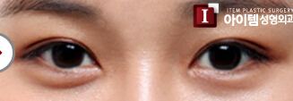 韩国ITEM整形医院-韩式双眼皮整形对比案例